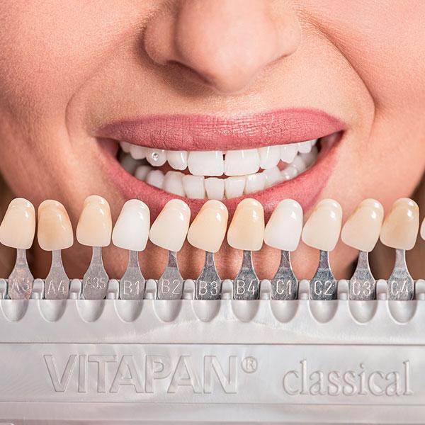 Dachau Zahnarzt Dr. Gitt bietet viele Leistungen im Bereich der Zahnästhetik