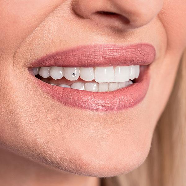 Dachau Zahnarzt Dr. Gitt bietet auch Zahnschmuck an